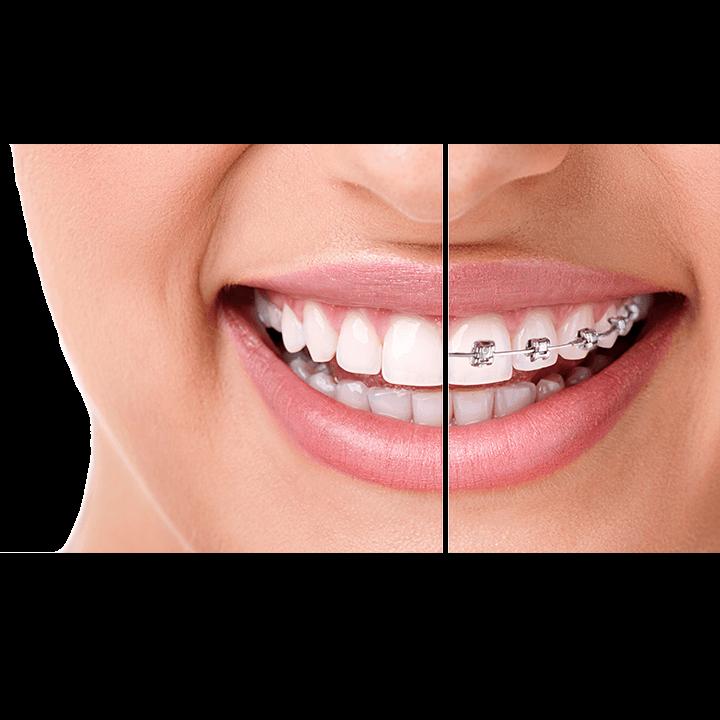Dantura inainte si dupa tratamentul ortodontic